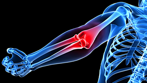 Lifters-elbow-the-cause-and-the-cure
